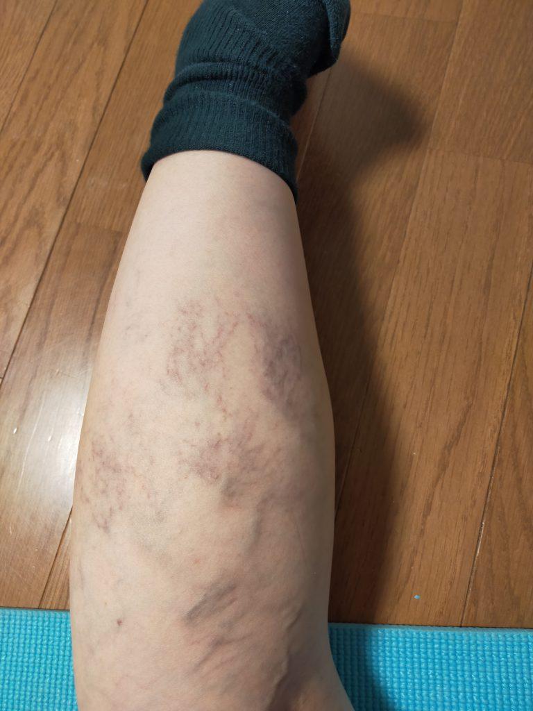 右足の静脈瘤の写真