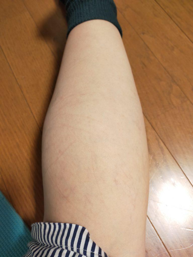 左足膝裏の写真